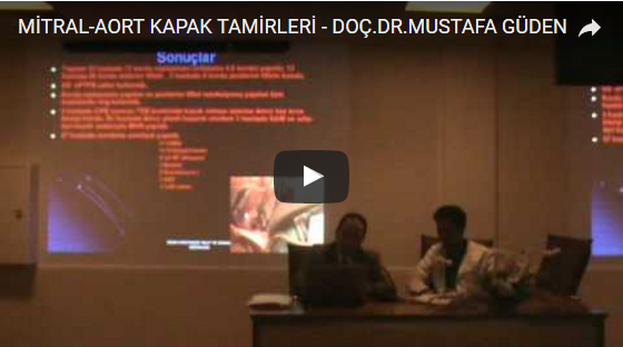 Mitral kapak tamiri video