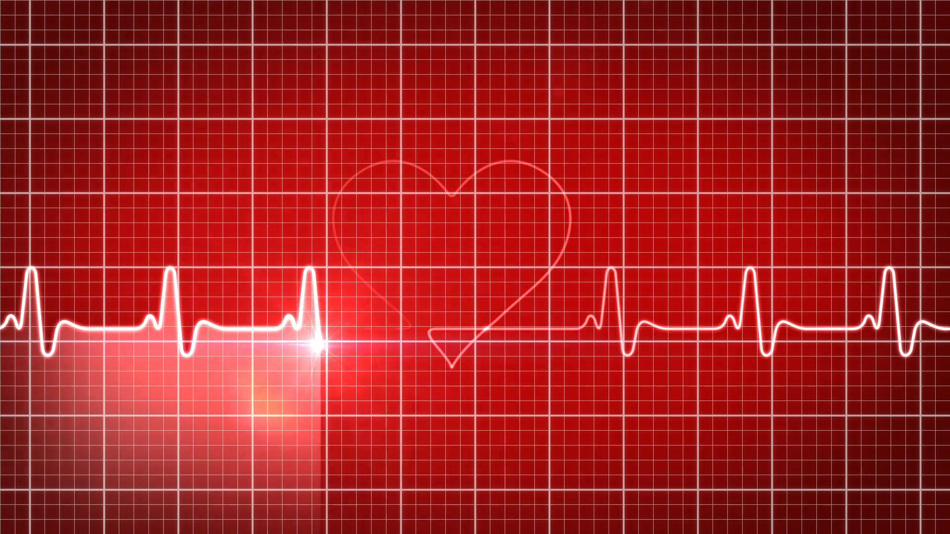 loop-ready-background-ekg-electrocardiogram-pulse-heart-looking-waveform_v1xnrczd__F0000